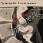 Грыжа диска L4-L5
