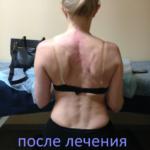 После лечения кифосколиоза 3 степени